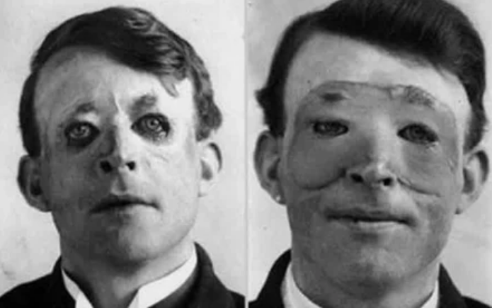 лицо, операция