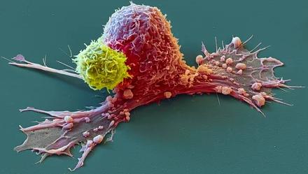 Раковые клетки уничтожатся под действием комплекса веществ