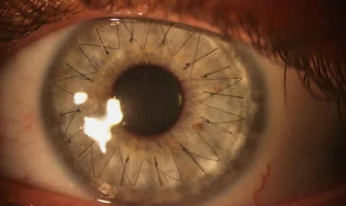 глаз, операция