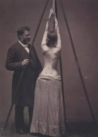 Девушка лечит искривление спины